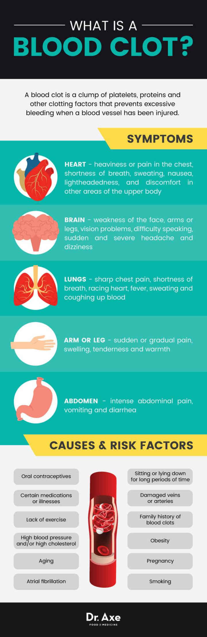 Blood clots: causes 7 symptoms