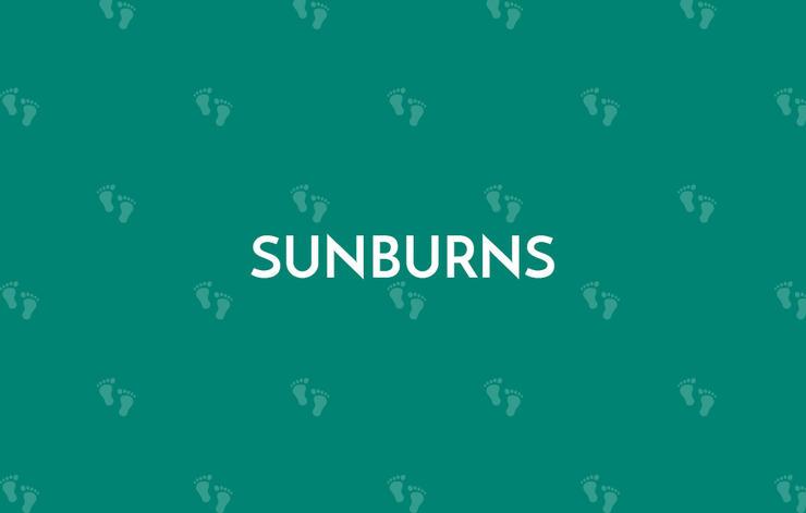 Sunburns