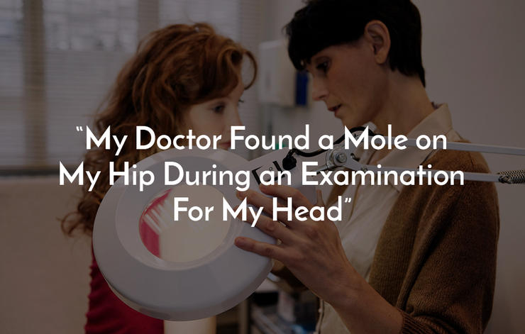 My Doctor Found a Mole on My Hip During an Examination For My Head